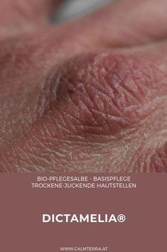 Eine uralte Rezeptur aus Origanum dictamnus, Rosmarinextrakt und extra nativem Bio-Olivenöl zur Linderung von verschiedensten Hautirritationen. Sie eignet sich besonders bei sehr trockenen Hautstellen, wie Lippen und Hände, aber auch bei Neurodermitis. Origanum Dictamnus wird heute aufgrund seiner stark antibakteriellen Wirkung geschätzt. Dictamelia® Salbe ist auch für die dünne, empfindliche Babyhaut geeignet und ist im österreichischem Warenverzeichnis Apothekerwaren gelistet! Stark, Crete, Lips