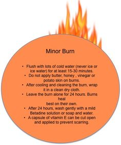 First Aid Tips: What to do in case of a minor burn