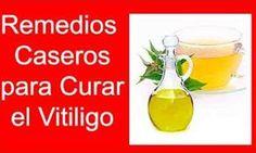 Vitíligo cura casera definitiva tratamiento natural
