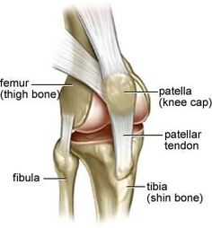 "Patellar dislocation is the scientific or ""fancy"" name for a dislocated kneecap. Learn about the surprising difference between a patellar dislocation and knee dislocation, dislocated kneecap symptoms, patellar dislocation risk factors, and treatment. Acl Knee, Knee Injury, Knee Dislocation, Knee Joint Anatomy, Common Knee Injuries, Knee Cap, Knee Pain Relief, Yoga Anatomy, Human Body Parts"