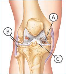 Synvisc One - injections for knee arthritis - hoping it works!! Clínica de Artrosis y Osteoporosis S.A.S www.clinicaartrosis.com  es una entidad privada ubicada dentro del Centro comercial CENTRO SUBA - Calle 145 No. 91-19  en el Segundo piso, L10-104 en la ciudad de Bogotá D.C. República de Colombia. PBX: 571-6923370; 571-6837538, Telefax: 571-6836020, Móvil +57 314-2448344, 300-2597226, 311-2048006, 317-5905407.