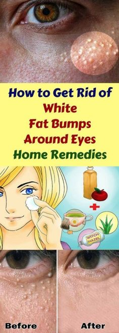 Home Remedies to Get Rid of White Fat Bumps Around Eyes Naturally | Woxtips