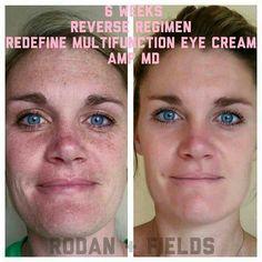 #rodanandfields #sundamage #freckles #sunspots #darkspots #rodanandfields #reverse #redefine #eyecream #darkcircles #ampmd #microneedleroller