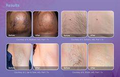 We offer laser hair removal  Call us today 609.301.0760 Princeton Plastic Surgeons Princeton, NJ