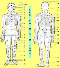 The act of performing Hijama is a Sunnah of the  Prophet Muhammad  صل الله عليه و سلم  and it is extensively reported in a wide collectio...