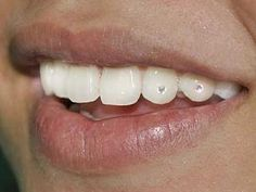 the teeth jewels I provide are Genuine Swarovski Crystals that are small in diameter & applied to the tooth using safe. For see more of fitness Freaks visit us on our website ! Diamond Grillz, Diamond Teeth, Diamond Glitter, Tooth Diamond, Teeth Implants, Dental Implants, Dental Jewelry, Tooth Jewelry, Piercings