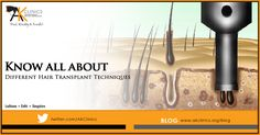 Different Hair Transplant Techniques and Procedures Hair Transplant In India, Hair Regrowth, Hair Loss Treatment, Latest Hairstyles, Clinic, Hair Care, Personal Care, Beauty, Self Care