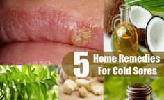 Home Remedies For Cold Sores #ColdSoreRemedies