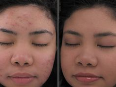 Celebrities with Melasma Treat Hyperpigmentation at home http://meladermpigmentreducingcomplex.org/