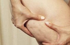 La cellulite est due à une obstruction du sang dans les vaisseaux, ce qui rend plus difficiles l'oxygénation des tissus et l'élimination des toxines.