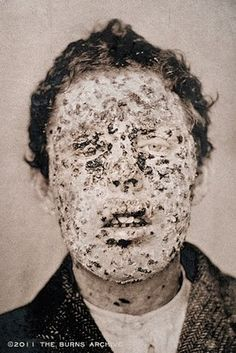 A man suffering from smallpox during the 1881 New York City Smallpox epidemic
