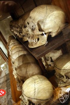 Discover Cesare Lombroso's Museum of Criminal Anthropology in Turin, Italy: The astonishing collection of an infamous criminologist. Body Farm, Human Tissue, Real Skull, Forensic Anthropology, Forensic Science, After Life, Medical History, Forensics, Museum Collection