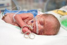 {Professional Insight} Documenting Your Baby's NICU Journey Through Photography   Preemie Babies 101