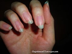 Really?  Just soaking your nails in salt water or cider vinegar - will have to try this!