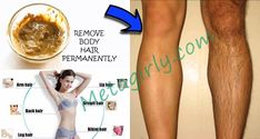 How To Naturally Remove Body Hair Permanently. ( No Waxing Or Shaving ) – World of Health 365 Diy Beauty Treatments, Body Treatments, Waxing Tips, Arm Hair, Pet Hair Removal, Unwanted Hair, Health And Beauty Tips, Hacks, Legs