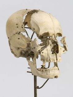 beauchene skull - mounted preparations of human skulls were used, Skeleton