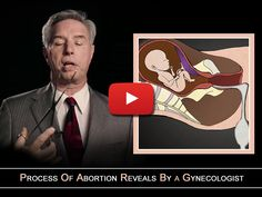 A look at the most brutal and painful abortion procedures conducted by a Gynaecologist