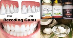 If you have a problem with receding gums you are on the right page because in the following article we will present you natural remedies for receding gums.