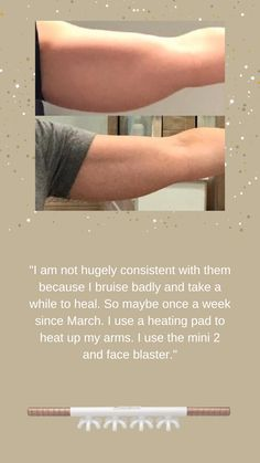 Don't overthink it and just Blast your arms! This #BlasterSister used the Mini2 and FaceBlaster for her arms just once a week. Try the FasciaBlaster now!