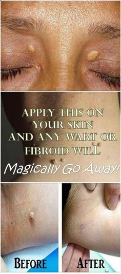 Apply This On Your Skin And Any Wart or Fibroid Will Magically Go Away!