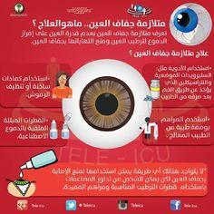 متلازمة جفاف العين،،ماهو العلاج