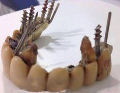Patient: Can you just recement this for now? #dentalhumor
