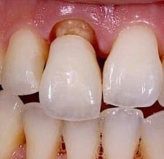 Dental Health, Teeth, Hair Care, Dentists, Studio, Dental Art, Oral Health, Tooth, Hair Care Tips