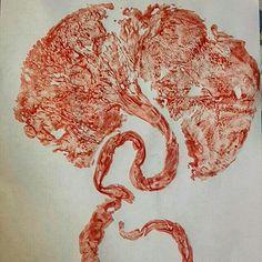 Placenta i printed yesterday after a vbac birth
