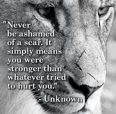Never be ashamed of a scar…