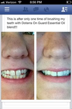 She used DoTerra oil blend On Guard to naturally whiten her teeth. This is after a single application. Just add one drop oil to toothbrush then add your toothpaste and brush. Young Living Oils, Young Living Essential Oils, Doterra Essential Oils, Natural Essential Oils, Diy Beauty Soap, Oils For Life, Healthy Oils, Doterra Oils, Facial Care