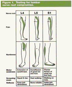 Testing for lumbar nerve root compression Sciatic Pain, Sciatica, Sciatic Nerve, Examen Clinique, Sensory Nerves, Hip Problems, Spine Health, Medical Anatomy, Nerve Pain