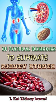 10 Natural remedies TO ELIMINATE KIDNEY STONES!