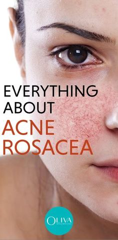 Rosy pink cheeks are beautiful to behold. But, don't confuse it with rosacea. Rosacea is when the skin suffers from chronic inflammation that includes redness, spots, facial flushing, and thick and dry skin. Rosacea can also consist of bumpy and pus-filled pimples known as Acne Rosacea. Read on to understand more about this skin problem. #acnerosacea #pimplecare #acnetreatment #skincare #clearskin #acneremoval