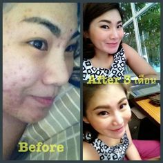 acne 4
