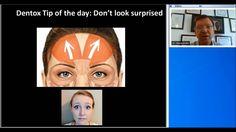 Botox Training | Avoid/Fix Surprised Look Side Effect | (858) 905-5780