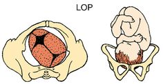 What You Should Know About Your Baby's Position During Labor and Birth: Left Occiput Posterior (LOP)