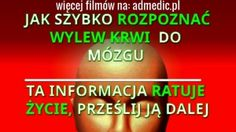 WYLEW KRWI  DO MÓZGU. JAK SZYBKO ROZPOZNAĆ - FILM Health Fitness, Film, Movie, Films, Film Stock, Film Books, Health And Fitness, Fitness, Movies