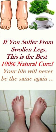If You Suffer From Swollen Legs, This is the Best 100% Natural Cure! Your life will never be the same again ...