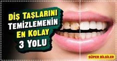 Kesin çözüm…Bu yöntemle diş taşlarından kurtulun.Dişlere, diş etlerine, diş dolgusuna ve diş protezlerine tutunan yapışkan ve yumuşak bakteri tabakasına diş plağı denir. Bu plaklar tükürüğümüzde bulunan mineraller ile birleşerek sertleşir ve tartar denilen tabakayı meydana getirirler. Aspirin, Viera, Cleaning, Beauty, Dental Caries, Genetics, Home Cleaning, Beauty Illustration