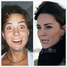 Kate Middleton Plastic Surgery Before and After Photos Nose Job, Possibly Lipsou. - - Kate Middleton Plastic Surgery Before and After Photos Nose Job, Possibly Lipsouction and Botox 2 <! Bad Plastic Surgeries, Plastic Surgery Gone Wrong, Celebrities Before And After, Celebrities Then And Now, Kate Middleton, Acne On Nose, Salt And Pepper Hair, Celebrity Plastic Surgery, Photoshop