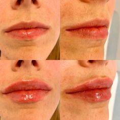 Wunderschönes Ergebnis nach nur 1ml Hyaluronsäure mit spezieller Technik! Lip Fillers, Septum Ring, Lip Shapes, Fuller Lips, Liposuction, Thin Lips, Face, Upper Lip, Wels