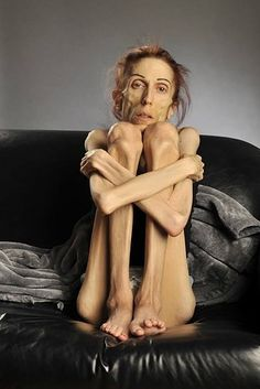 I need a thesis on supermodels and anorexia?