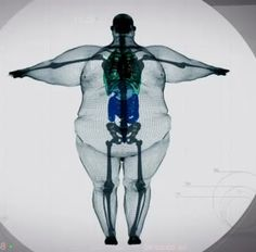 Computer Animation Of Dude Who Weighs 980 Lbs Is Completely Mind-Blowing | Sick Chirpse (shared via SlingPic)