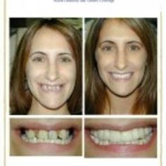 Before and After Photo    Wow! Look at this young woman's before smile! Then look at the after smile that Dr. LeBlanc created for her. She's beautiful and even looks younger!    http://www.kenleblancdds.com/.