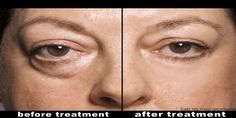 Woman Used Natural Treatments To Eliminate Eye Bags In A Few Days   Family Health Freedom Network