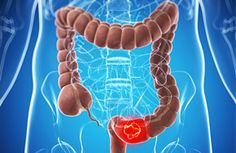 Vitamina D per prevenire il cancro del colon-retto