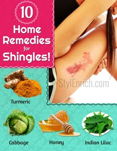 What are some natural herbs used to eliminate shingles?
