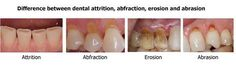What is the difference between dental attrition, abfraction, erosion and abrasion?