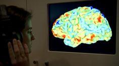 Ongelofelijk: Vrouw leeft zonder belangrijk deel hersenen