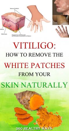 Vitiligo: How to Remove the White Patches from Your Skin Naturally – 360 Healthy Ways